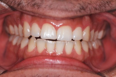 Dental before & after photo